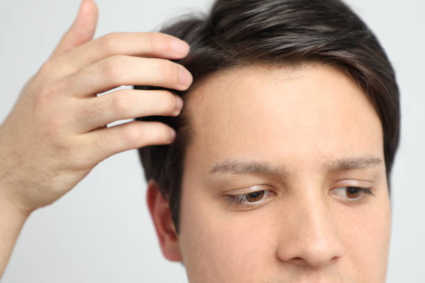 Guide To Find The Right Toupee For Men